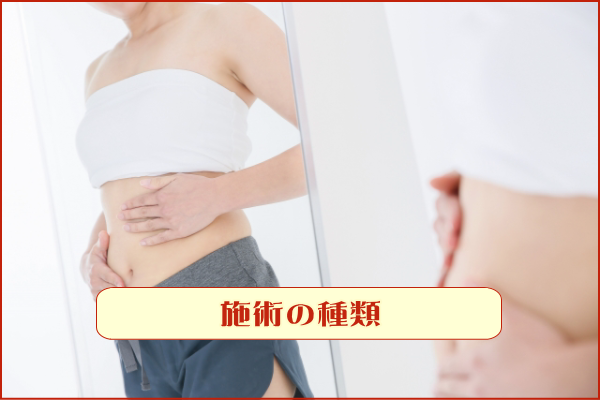 湘南美容クリニック(SBC) 施術の種類